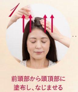 ミホレ育毛剤 口コミ,分け目 薄い 女性 育毛剤